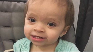 Family shares their journey through Chromosome 18 abnormality
