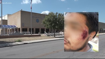 Mom says son suffered concussion after SAISD police threw him to ground