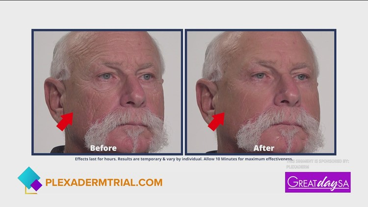 More youthful looking skin in minutes