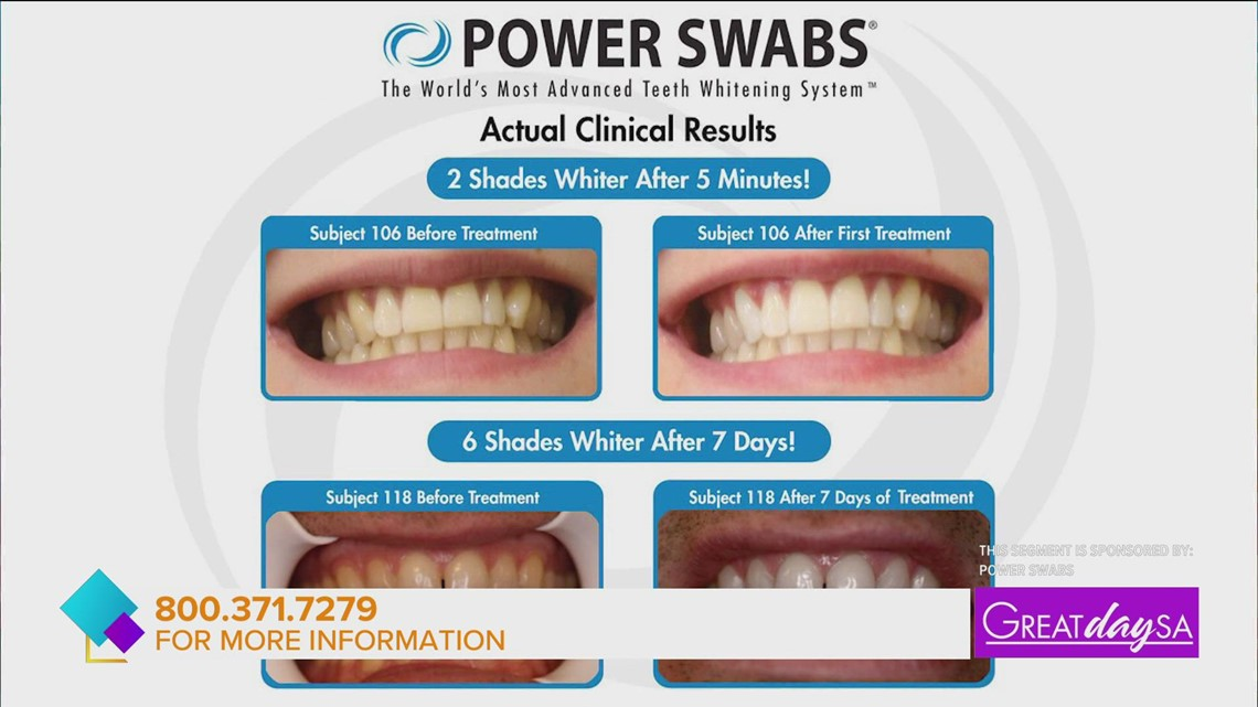 Whiten your teeth in minutes