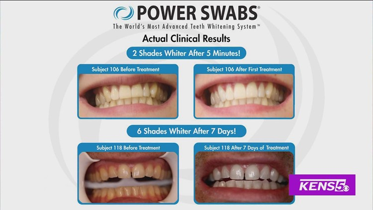 GREAT DAY SA: Brighten your smile from the comfort of your home with Power Swabs