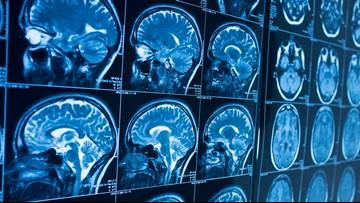 Alzheimer's drug development: What's in the pipeline?